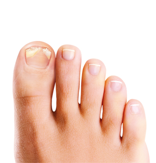 ongles abimes pied